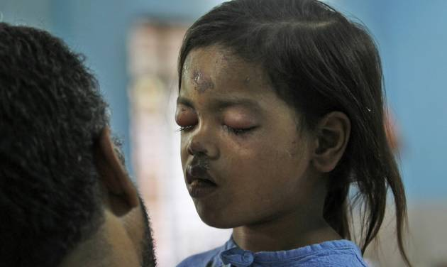 An Indian social worker talks to injured girl Sandhya Thakur, whose mother was killed in a building collapse, at a hospital on the outskirts of Mumba, India, Friday, April 5, 2013. A residential building being constructed illegally on forest land in a suburb of India's financial capital collapsed into a mound of steel and concrete, killing at least 47 people and injuring more than 70 others, authorities said Friday. (AP Photo/Rajanish Kakade)