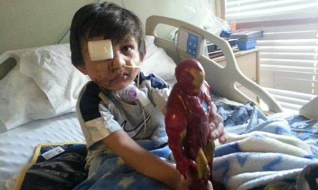 This Feb. 2014 photo provided by Flor Medrano shows Kevin Vicente in Phoenix, Ariz.  Four-year-old Kevin Vicente's road to recovery after a dog mauling on Feb. 20, 2014,  has ignited thousands of impassioned pleas, not just not for him.  The animal behind the attack is now the object of a Facebook page that has garnered more than 39,000 likes on Facebook.  The fate of Mickey the pit bull will ultimately be decided in a court hearing March 25 in Phoenix.  Guadalupe Villa, who was at the scene of the attack, has filed a vicious-animal petition to have the dog put down.  Doctors say the attack has left the boy unable to swallow properly or open one eye.  They say Kevin faces months, if not years, of reconstructive surgery.(AP Photo/)