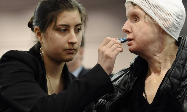 Briana Nash, left, helps her mother Charla Nash, apply lip balm before speaking to Connecticut legislators at a public hearing at the Legislative Office Building, Friday, March 21, 2014, in Hartford, Conn. Nash, who was mauled by a friend's chimpanzee in 2009, is making a personal plea to allow her to sue the state for $150 million in damages. The panel is considering a bill that would override the June decision by the State Claims Commissioner, who dismissed Nash's initial request for permission to sue. The state generally is immune from lawsuits, unless allowed by the claims commissioner. (AP Photo/Jessica Hill)