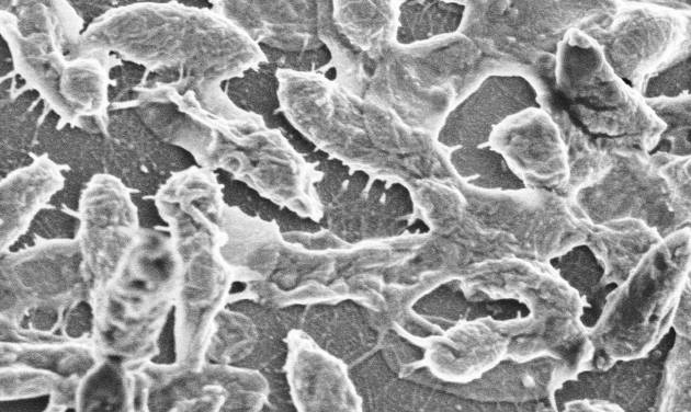 This image provided by UTMB-Galveston shows a scanning electron microscopic image of WT (wild type) Aeromonas hydrophila strain SSU, the bacteria responsible for the flesh-eating disease that is usually caused by a strep germ. Georgia grad student Aimee Copeland is fighting a life-threatening flesh-eating disease, and doctors are calling her case very rare. The infection occurred after she gashed her leg in a Georgia river May 1, 2012, after a zip line accident. (AP Photo/UTMB-Galveston, Ashok K. Chopra, Ph.D., and Dr. Leon Bromberg)