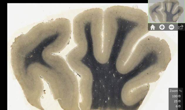 This digitized image made from a screen shot of a new iPad app, provided Sept. 24, 2012 by the National Museum of Health and Medicine Chicago, shows an image of brain tissue from renowned theoretical physicist Albert Einstein. The new application to be released Tuesday, Sept. 25 will allow users to see Einstein's brain as if they were looking through a microscope. The application promises to make detailed images of his brain more accessible to scientists than ever before. Teachers, students and anyone who's curious also can get a look. (AP Photo/Courtesy the National Museum of Health and Medicine Chicago)