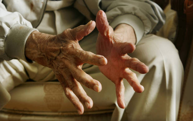 The hands of Oklahoma City resident Robert Jones, 103, as he talks at his home in Oklahoma City Thursday, Nov. 6, 2008, about this week's presidential election. BY PAUL B. SOUTHERLAND, THE OKLAHOMAN
