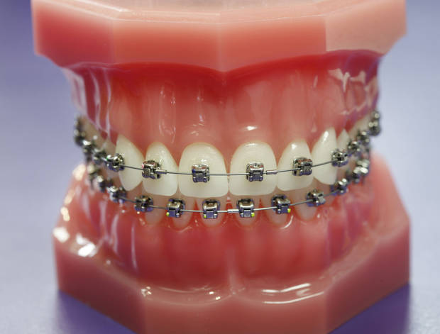 A sample of metal braces used at The Brace Place in Edmond. <strong>Steve Gooch - The Oklahoman</strong>