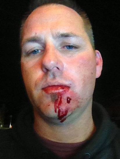 Jeremy Pospisil provided this photo that he said shows the injuries he suffered when he was punched Sunday.