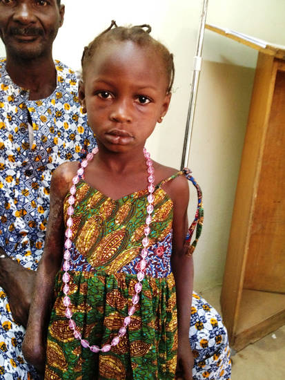 This young girl with severe burns on her right arm from a cooking fire recently sought medical treatment from a U.S. medical team working in Ivory Coast, Africa, as part of the Norman-based 1040i. PHOTO PROVIDED. <strong></strong>
