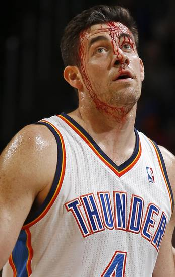 You can bid on Nick Collison's game-worn shoes from his bloody game in April against the San Antonio Spurs. Photo by Bryan Terry, The Oklahoman