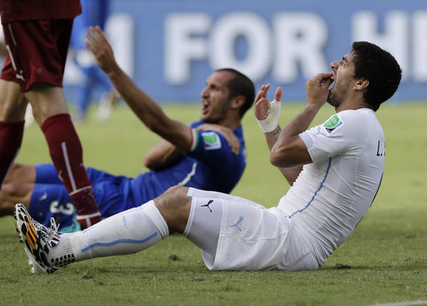 Uruguay's Luis Suarez holds his teeth after biting Italy's Giorgio Chiellini's shoulder during the group D World Cup match in Natal, Brazil, Tuesday, June 24, 2014. (AP Photo/Ricardo Mazalan)