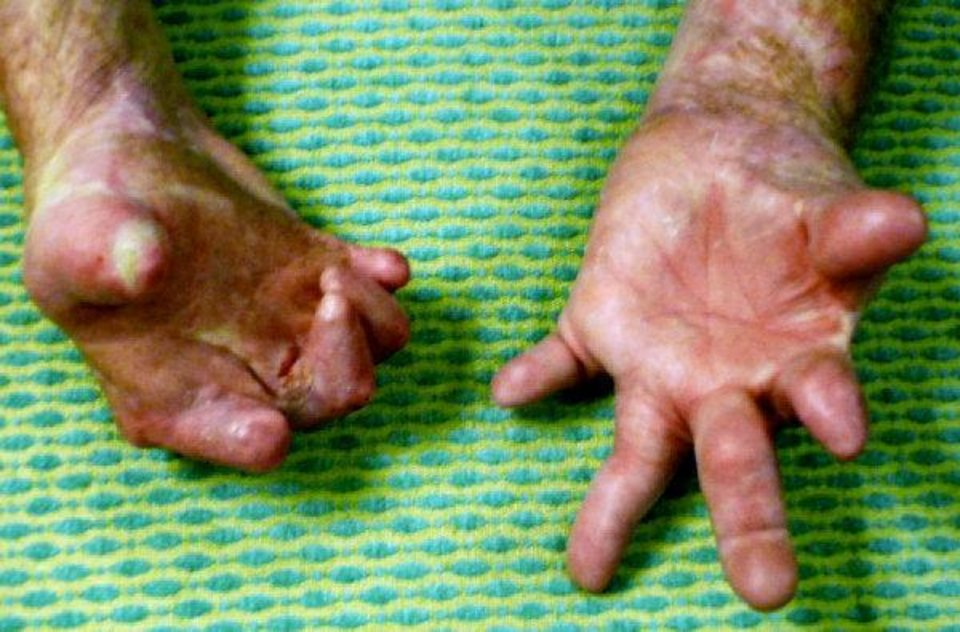 Richard Edwards' hands before surgeons replaced them with donor hands. (HE is called Rich in the story ... both are CQ) <strong>Provided</strong>