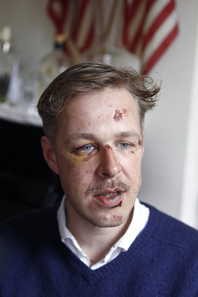 Photo - Wilfred de Bruijn, a Dutch citizen who lives and works as a librarian in Paris, France, speaks during an interview with The Associated Press at his apartment in Paris, Wednesday, April 10, 2013. De Bruijn was beaten unconscious near his home early Sunday morning in central Paris, sustaining 5 fractures in his head and face, abrasions and a lost tooth. After posting a photo of his wounds on Facebook, the image went viral and de Bruijn has become a national cause celebre of the pro-gay campaign. (AP Photo/Remy de la Mauviniere)