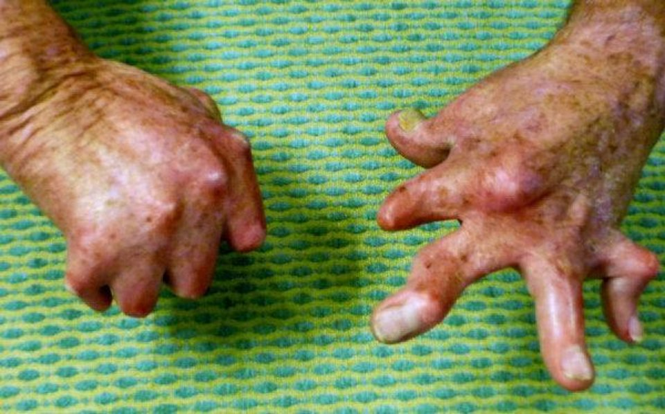 Richard Edwards hands were severely burned in a fiery accident in 2006. Provided