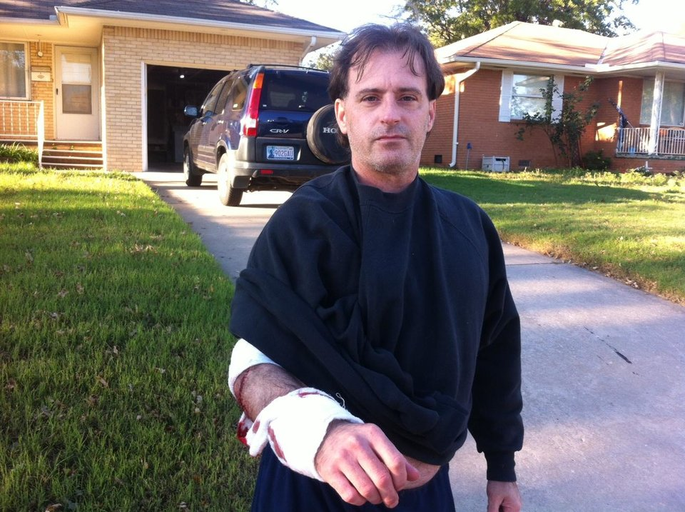 Photo - Randal Love, 45, of Oklahoma City, displays the bandage on his wound.  Photo by Robert Medley