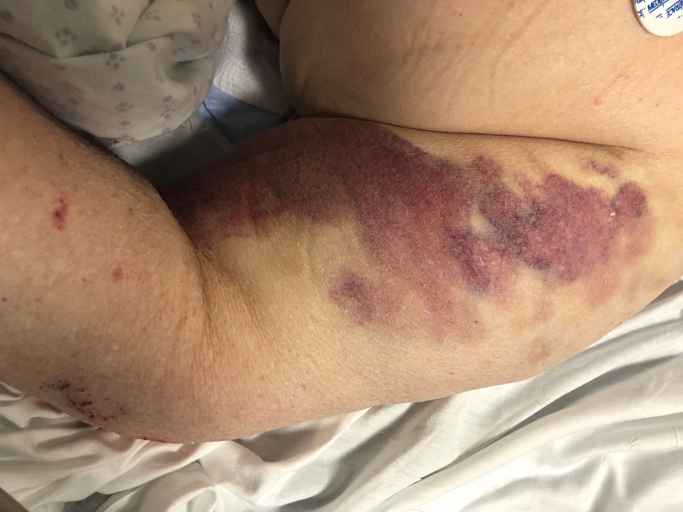 Photo -  Myron Ballou sustained unexplained bruising while a patient at Rolling Hills Hospital in December 2017 and January 2018. [Photo provided by Marsha Ballou]