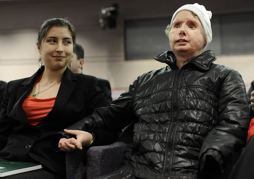 Photo - Briana Nash, left, looks at her mother, Charla Nash after she finished speaking to Connecticut legislators at a public hearing at the Legislative Office Building, Friday, March 21, 2014, in Hartford, Conn. Nash who was mauled by a friend's chimpanzee in 2009 is making a personal plea to allow her to sue the state for $150 million in damages. The panel is considering a bill that would override the June decision by the State Claims Commissioner, who dismissed Nash's initial request for permission to sue. The state generally is immune from lawsuits, unless allowed by the claims commissioner. (AP Photo/Jessica Hill)