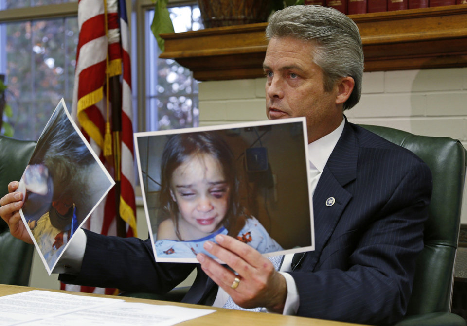 Pottawatomie County District Attorney Richard Smothermon holds up hospital pictures of Serenity Deal as he speaks to the media Friday in Shawnee. He said DHS workers suppressed this evidence of injuries the girl suffered during an overnight visit with her father who later killed her.  <strong>BRYAN TERRY - THE OKLAHOMAN</strong>