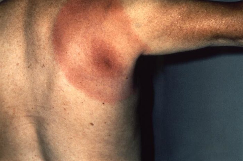 Photo - This image depicts the posterior right shoulder region of a patient who presented with the erythema migrans rash characteristic of what was diagnosed as Lyme disease, caused by the bacterium, Borrelia burgdorferi. B. burgdorferi bacteria are transmitted to humans through the bite of infected blacklegged ticks. Typical symptoms include fever, headache, fatigue, and a characteristic skin rash called erythema migrans. If left untreated, infection can spread to joints, the heart, and the nervous system.  Centers for Disease Control and Prevention - Centers for Disease Control and