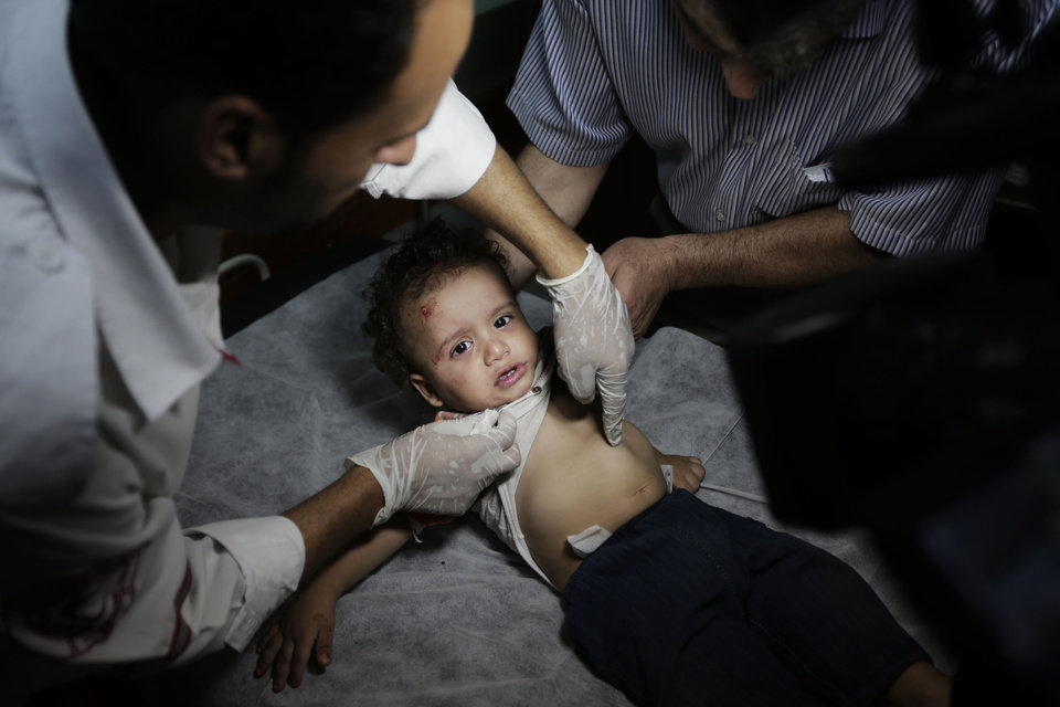 Photo - A Palestinian baby girl, lightly wounded in an Israeli strike at a house in Beit Lahiya, northern Gaza Strip, receives treatment, at the emergency room of the Kamal Adwan Hospital, in Beit Lahiya, Sunday, Aug. 3, 2014. (AP Photo/Lefteris Pitarakis)