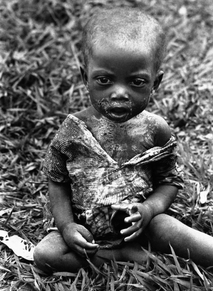 Photo -   FILE - In this Jan. 26, 1961 file photo shot by Associated Press photographer Horst Faas, a sick and hungry Baluba child is photographed at the Miabi Hospital in South Kasai, Congo. Faas, a prize-winning combat photographer who carved out new standards for covering war with a camera and became one of the world's legendary photojournalists in nearly half a century with The Associated Press, died Thursday May 10, 2012. He was 79. (AP Photo/Horst Faas, File)