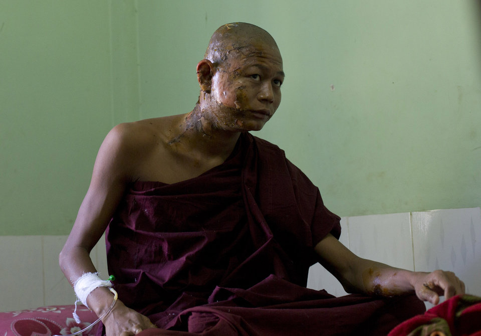 Photo - A Buddhist monk with burn injuries sits in his hospital bed in Monywa, northwestern Myanmar, Thursday, Nov 29, 2012. Security forces cracked down on protesters occupying a copper mine early Thursday, using water cannons and other devices to break up the rally hours before opposition leader Aung San Suu Kyi was expected to hear their grievances. Unexplained fires engulfed the protest camps at the Letpadaung mine in northwestern Myanmar and dozens of Buddhist monks and villagers were injured, according to several protesters. (AP Photo/Gemunu Amarasinghe)