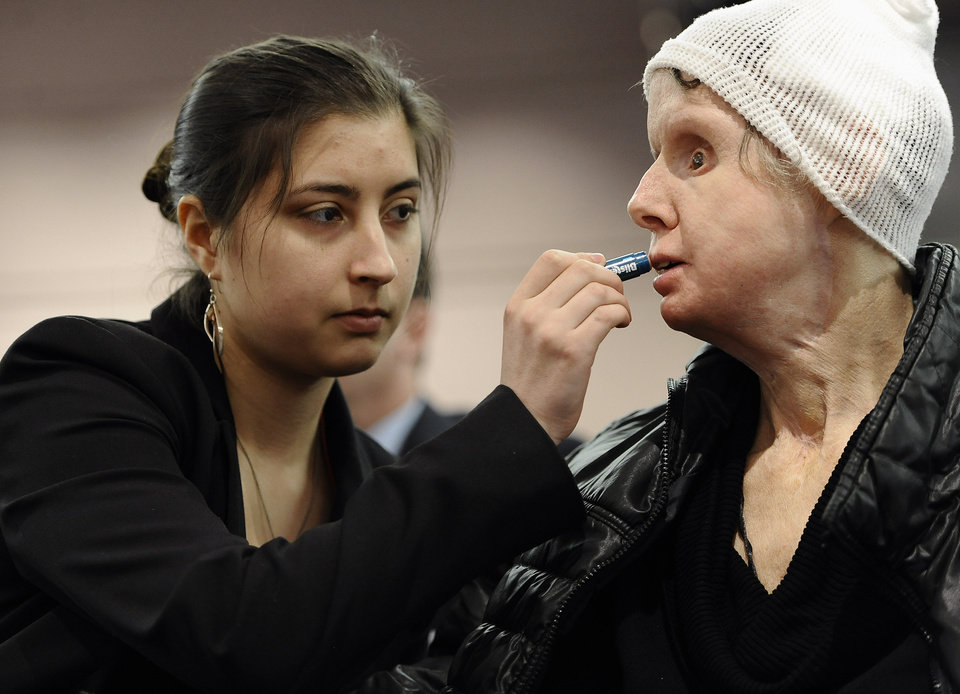 Photo - Briana Nash, left, helps her mother Charla Nash, apply lip balm before speaking to Connecticut legislators at a public hearing at the Legislative Office Building, Friday, March 21, 2014, in Hartford, Conn. Nash, who was mauled by a friend's chimpanzee in 2009, is making a personal plea to allow her to sue the state for $150 million in damages. The panel is considering a bill that would override the June decision by the State Claims Commissioner, who dismissed Nash's initial request for permission to sue. The state generally is immune from lawsuits, unless allowed by the claims commissioner. (AP Photo/Jessica Hill)