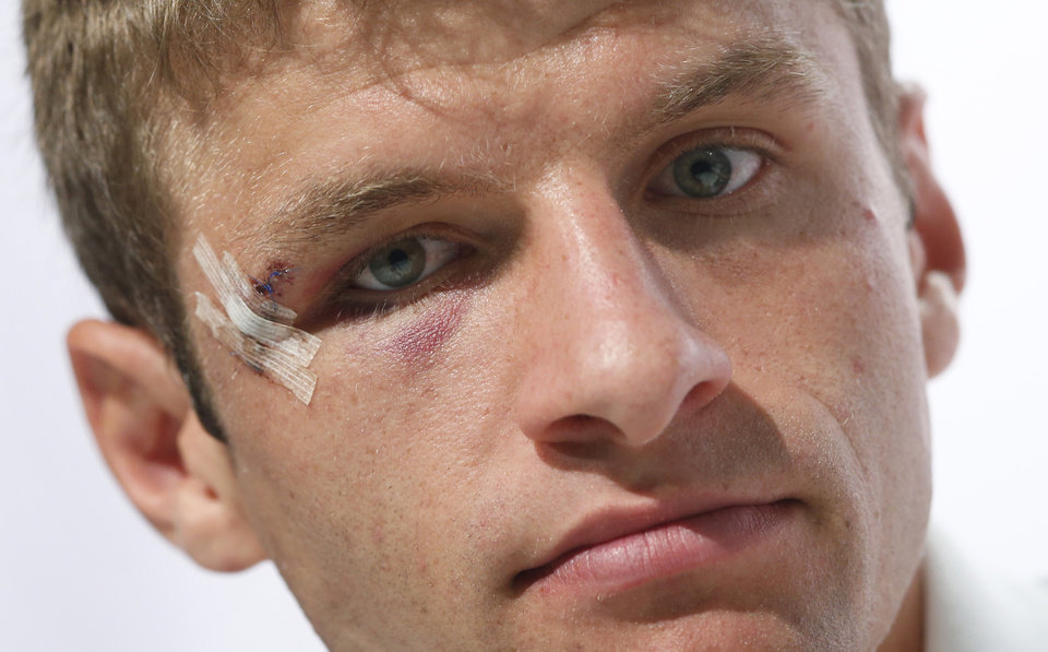 Photo - German national soccer player Thomas Mueller attends a news conference in Santo Andre near Porto Seguro, Brazil, Tuesday, June 24, 2014. Germany play in group G of the 2014 soccer World Cup. (AP Photo/Matthias Schrader)