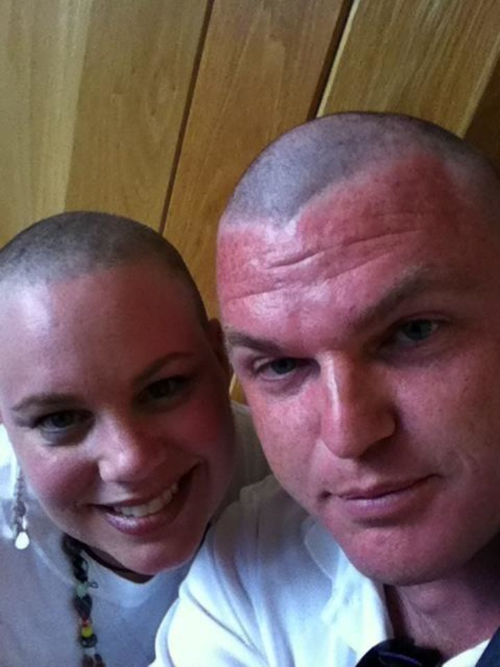 Amy Rachel, and her husband Chris, both shaved their heads during an event to help raise money for pediatric cancer research during the