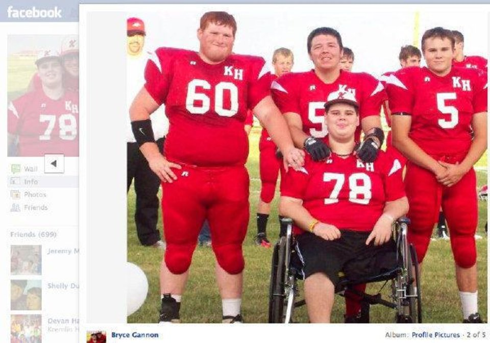 Photo - Facebook page of Bryce Gannon, lost his leg over the summer at a grain elevator accident. Out of the hospital and at the homecoming football game. ORG XMIT: KOD