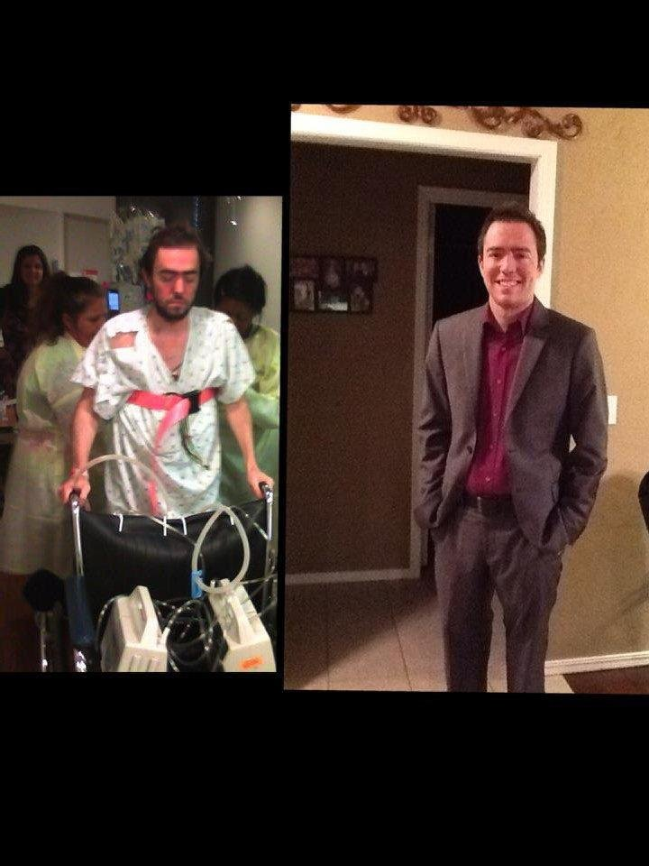 Photo - Before and after photos of Jonathan Sacker. Sacker had a double lung transplant on May 22.Photos provided