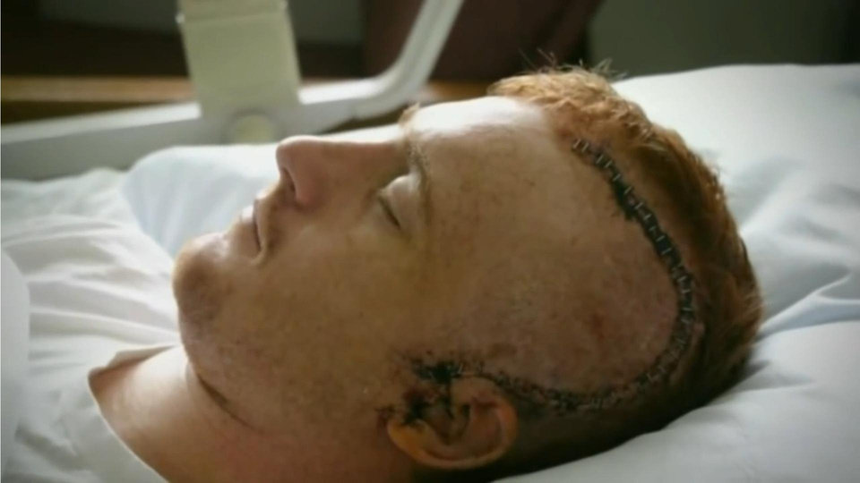 Photo -  A screen capture from a YouTube video in which Cord McCoy explains the day in 2004 when his skull was crushed while competing in a rodeo in Oklahoma City. IMAGE PROVIDED