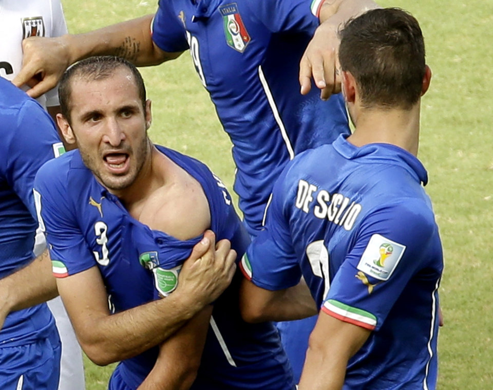 Photo - Italy's Giorgio Chiellini displays his shoulder showing apparent teeth marks after colliding with the mouth of Uruguay's Luis Suarez during the group D World Cup soccer match between Italy and Uruguay at the Arena das Dunas in Natal, Brazil, Tuesday, June 24, 2014. (AP Photo/Hassan Ammar)