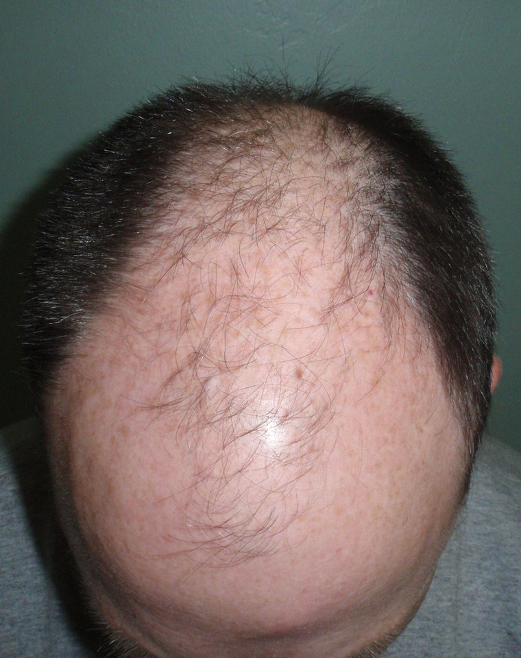 Photo - BEFORE A patient's head is shown before the procedure.
