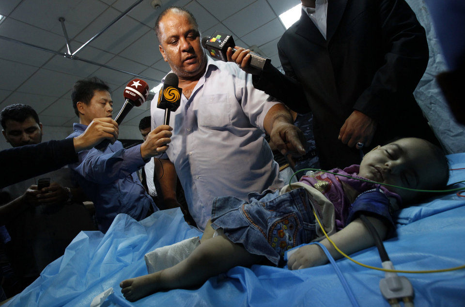 Photo -   CAPTION ADDITION, ADDS IDENTITY OF GIRL AND INFORMATION IN SECOND SENTENCE ON THE CAUSE OF INJURY - In this photo taken on a government organized tour, Libyan official points at a girl identified by officials as