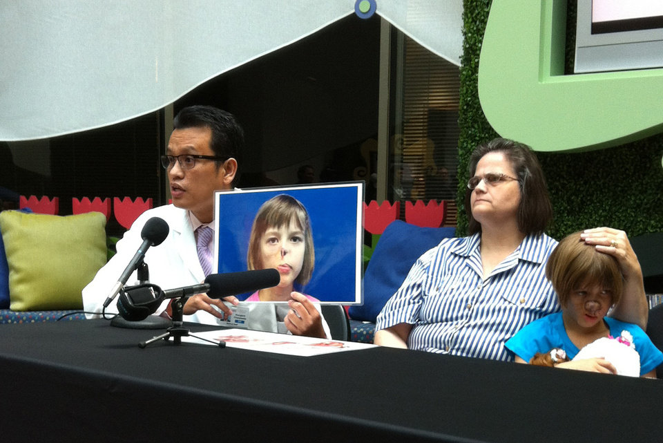 Photo -   Dr. Kongkrit Chaiyasate holds up a photo of Charlotte Ponce while talking at a news conference beside Charlotte and her mother, Sharon Ponce, at Beaumont Hospital in Royal Oak, Mich., on Wednesday, Aug. 22, 2012. Charlotte is recovering from the first in a series of reconstructive facial surgeries that the 10-year-old is scheduled to undergo over the next two years. (AP Photo/Mike Householder)