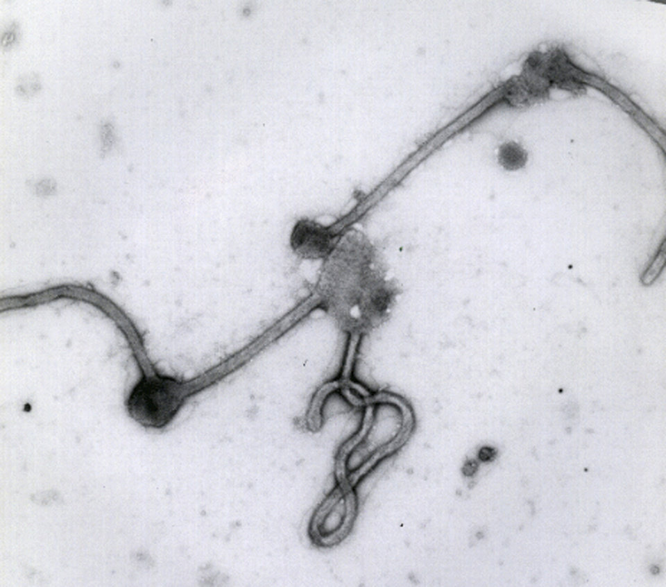 Photo - This undated photo made available by the Antwerp Institute of Tropical Medicine in Antwerp, Belgium, shows the Ebola virus viewed through an electron microscope. The World Health Organization on Friday, Aug. 8, 2014 declared the Ebola outbreak in West Africa to be an international public health emergency that requires an extraordinary response to stop its spread. (AP Photo/Antwerp Institute of Tropical Medicine)
