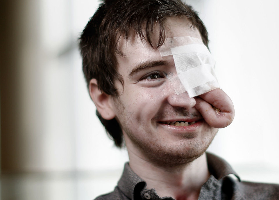 Photo - Taron Pounds was hit in the face by a mortar shell firecracker last July, causing him to lose a substantial amount of nasal and check bones, bones that support his left eye, the roof of his mouth and several teeth. The extra skin on his face will be used for a surgery in August to repair his cheek bone and lift his left eye.  BRYAN TERRY - THE OKLAHOMAN