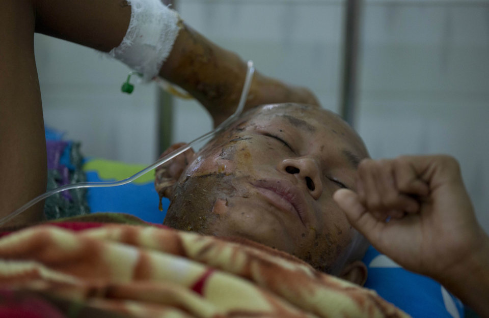 Photo - A Buddhist monk with burn injuries lies in a hospital bed in Monywa, northwestern Myanmar, Thursday, Nov. 29, 2012. Security forces cracked down on protesters occupying a copper mine early Thursday, using water cannons and other devices to break up the rally hours before opposition leader Aung San Suu Kyi was expected to hear their grievances. Unexplained fires engulfed the protest camps at the Letpadaung mine in northwestern Myanmar and dozens of Buddhist monks and villagers were injured, according to several protesters. (AP Photo/Gemunu Amarasinghe)