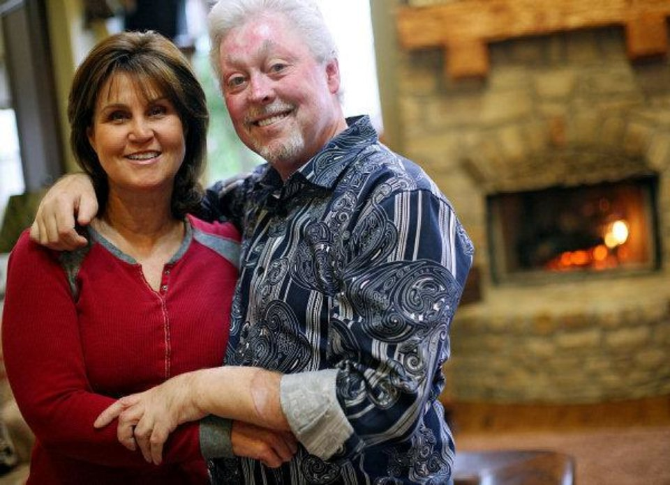 Richard and Cindy Edwards say the fire and the long road to his double-hand transplantation changed their lives for the better.   <strong>John Clanton</strong>