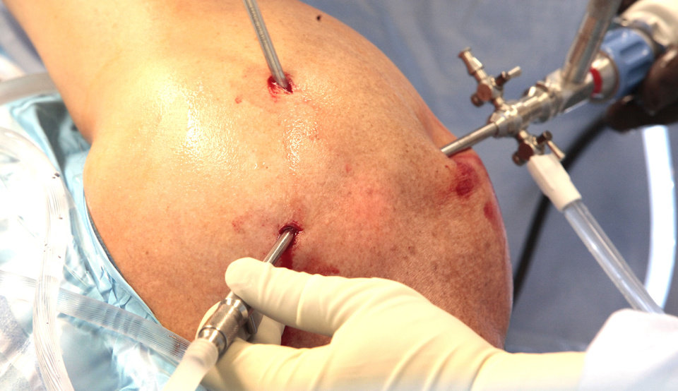 Photo - Dr. David Holden performs arthroscopic shoulder surgery at McBride Orthopedic Hospital in Oklahoma City. An arthroscopic surgery involves a camera that allows the surgeon to see inside the joint.  David McDaniel - The Oklahoman