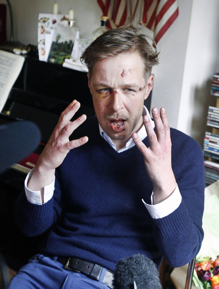 Wilfred de Bruijn, a Dutch citizen who lives and works as a librarian in Paris, France, gestures during an interview with The Associated Press at his apartment in Paris, Wednesday, April 10, 2013. De Bruijn was beaten unconscious near his home early Sunday morning in central Paris, sustaining 5 fractures in his head and face, abrasions and a lost tooth. After posting a photo of his wounds on Facebook, the image went viral and de Bruijn has become a national cause celebre of the pro-gay campaign. (AP Photo/Remy de la Mauviniere)