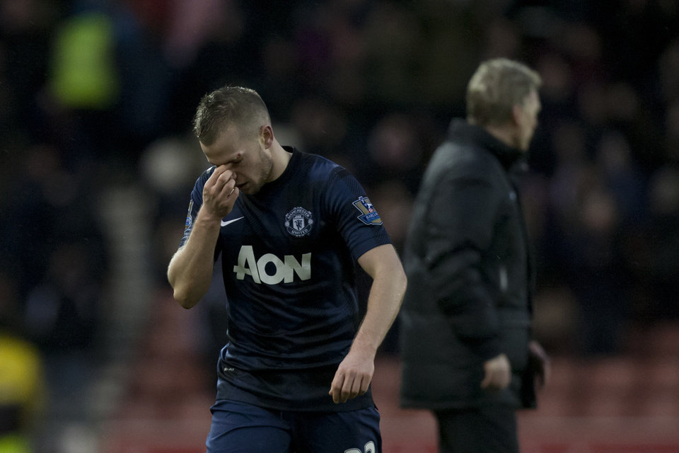 Photo - Manchester United's Tom Cleverley holds his nose after his team's 2-1 loss at Stoke in their English Premier League soccer match at the Britannia Stadium, Stoke, England, Saturday Feb. 1, 2014. (AP Photo/Jon Super)