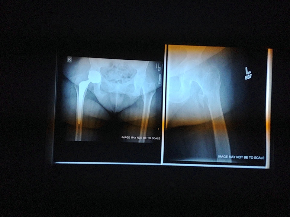 Photo -  An X-ray shows two versions of patients with hip fractures and repairs. A broken hip can be a devastating injury.     Jaclyn Cosgrove/The Oklahoman  -  Jaclyn Cosgrove/The Oklahoman