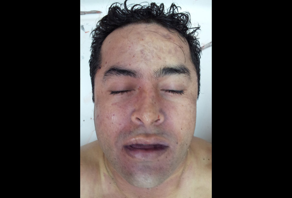 Photo -   This photo released by Mexico's Navy on Tuesday, Oct. 9, 2012 allegedly shows the body of Zeta drug cartel leader and founder Heriberto Lazcano while in the possession of Mexico's Medical Forensic Service (SEMEFO) in Sabinas, Mexico. Mexico's Navy says fingerprints confirm that cartel leader Lazcano, an army special forces deserter whose brutal paramilitary tactics helped define the devastating six-year war among Mexico's drug gangs and authorities, was killed Sunday in a firefight with marines in the northern state of Coahuila on the border with the Texas. (AP Photo/Mexico Navy)