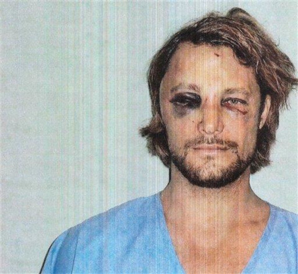 This photo made available in Los Angeles Superior Court documents released Monday, Nov. 26, 2012 shows Gabriel Aubry, who was arrested after a Thanksgiving confrontation at Halle Berry's house with the actress' fiance, Olivier Martinez. Aubry, Berry's ex-boyfriend claims Martinez threatened to kill him during a confrontation that left him with a broken rib, bruised face and under arrest. (AP Photo/Los Angeles Superior Court)