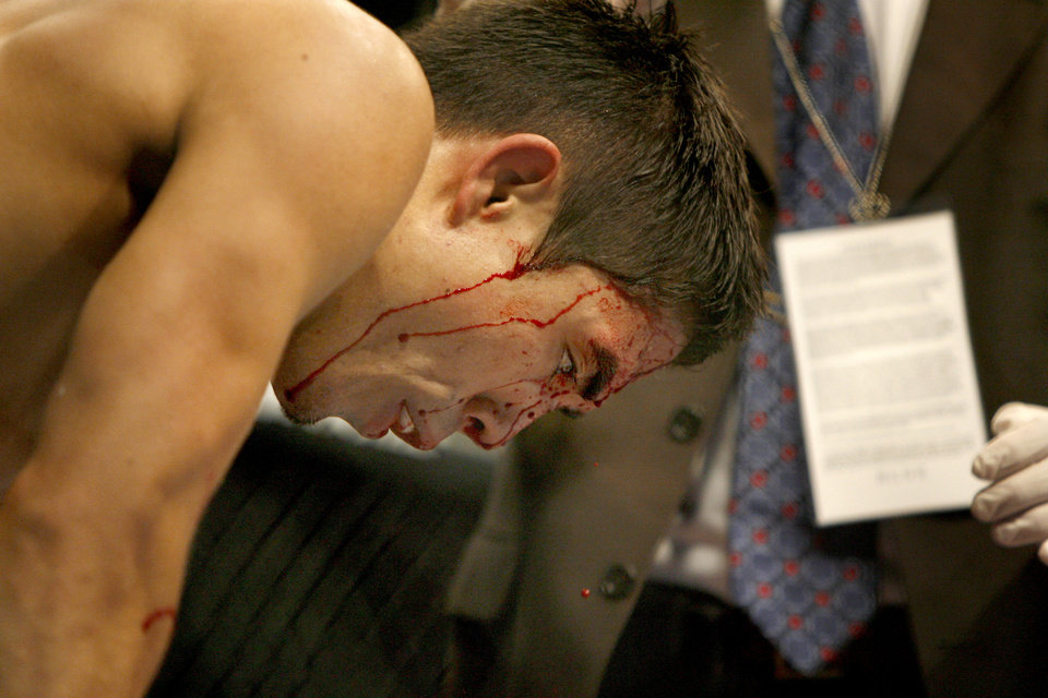 Photo - Blood drips from the face of Justin Buchholz after his loss to Jeremy Stephens during UFC Fight Night at the Cox Convention Center in Oklahoma City, Wednesday, September 16, 2009.  Photo by Bryan Terry, The Oklahoman
