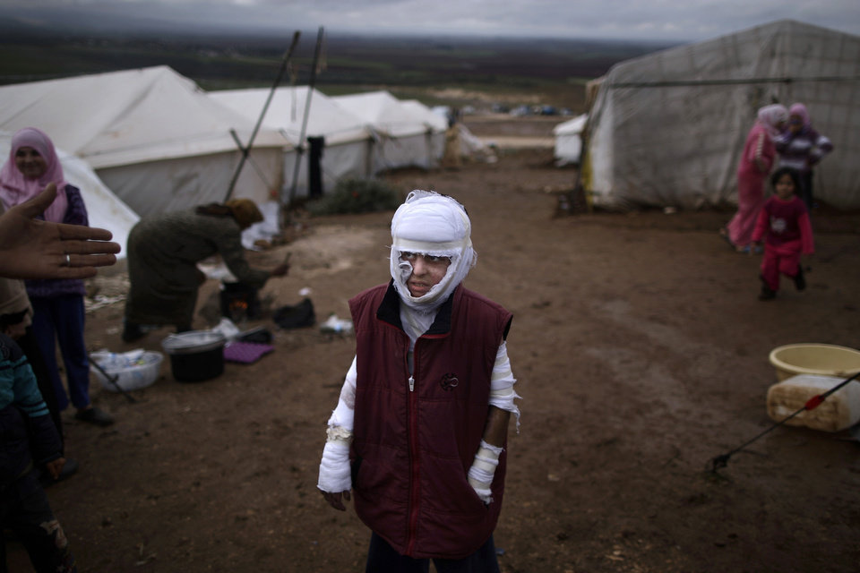 Abdullah Ahmed, 10, who suffered burns in a Syrian government airstrike and fled his home with his family, stands outside their tent at a camp for displaced Syrians in the village of Atmeh, Syria, Tuesday, Dec. 11, 2012. This tent camp sheltering some of the hundreds of thousands of Syrians uprooted by the country's brutal civil war has lost the race against winter: the ground under white tents is soaked in mud, rain water seeps into thin mattresses and volunteer doctors routinely run out of medicine for coughing, runny-nosed children. (AP Photo/Muhammed Muheisen) ORG XMIT: XMM509