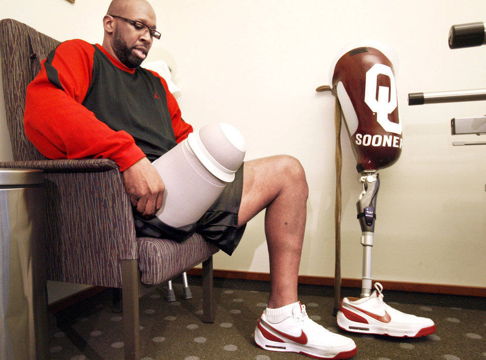 Former Sooner basketball star Wayman Tisdale prepares Tuesday to put on his prosthetic leg at Sabolich Prosthetics & Research in Oklahoma City. PHOTO BY SARAH PHIPPS, THE OKLAHOMAN <strong></strong>
