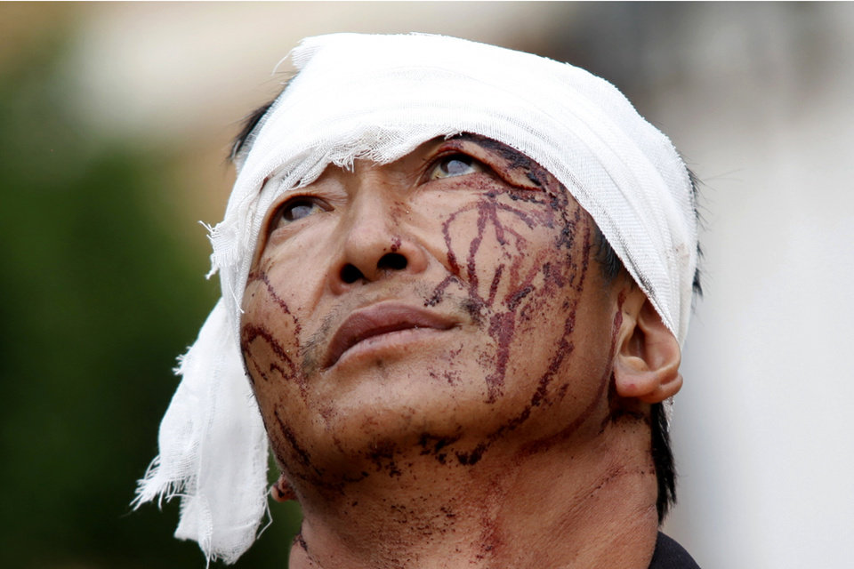 Photo - An injured man with dried blood stains on his face stands on the street of the town of Longtoushan which is the epicenter of an earthquake that struck Ludian county in southwest China's Yunnan province Monday, Aug. 4, 2014. Rescuers dug through shattered homes Monday looking for survivors of the strong earthquake that toppled thousands of homes on Sunday, killing hundreds and injuring more than a thousand people. (AP Photo) CHINA OUT