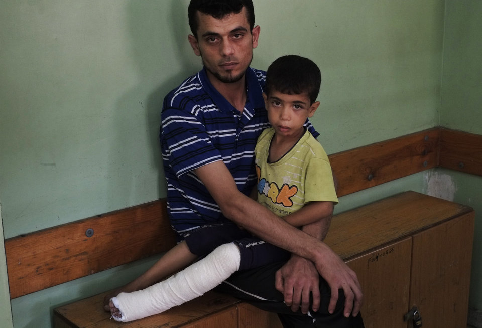 Photo - Palestinian Ibrahim Imtawak, 30, holds his son Muhammed, 4, at the Kamal Adwan hospital in Beit Lahiya, northern Gaza Strip, Sunday, July 27, 2014. According to the father, Muhammed broke his left leg Thursday from falling debris at the family house after an Israeli strike close by. Israel resumed its Gaza strikes on Sunday, calling off a unilateral extension of a humanitarian cease-fire after Palestinian militants from inside Gaza fired several rockets at southern Israel. (AP Photo/Lefteris Pitarakis)