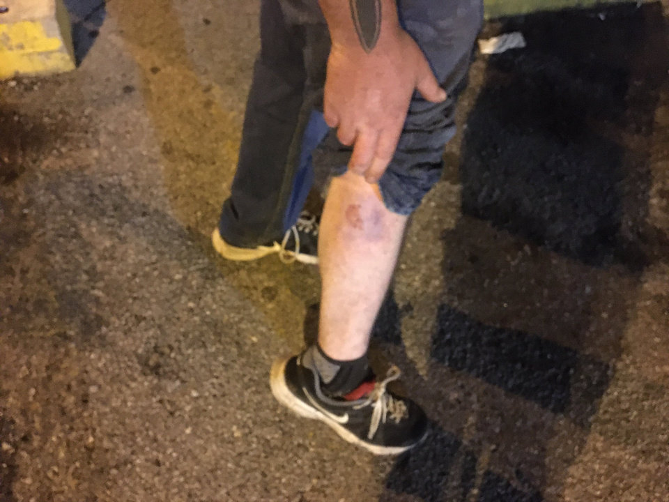 Photo - Protester Austin McCallie said he was struck by a rubber bullet fired by an Oklahoma City Police officer Sunday, May 31, 2020, in Oklahoma City. Photo by Chris Casteel