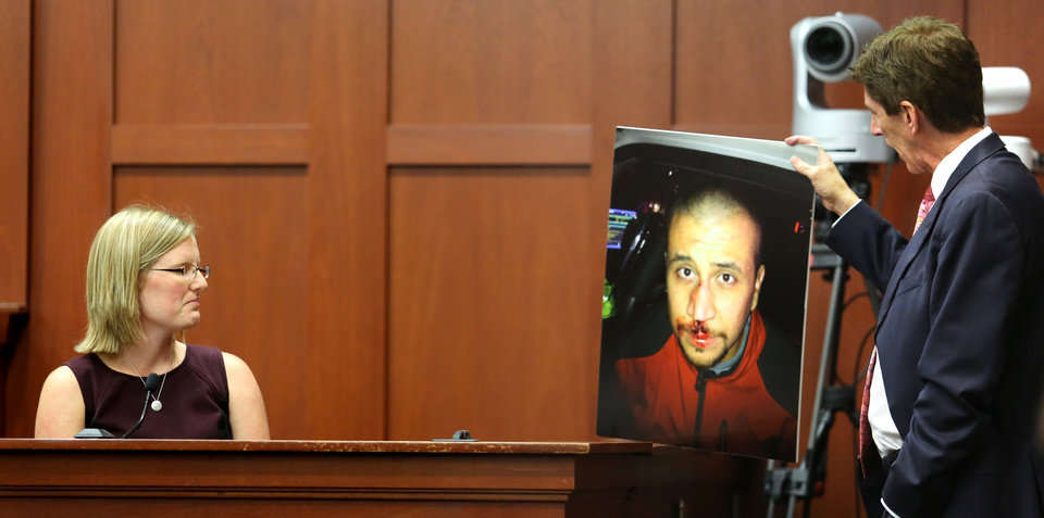 Photo - Mark O'Mara, George Zimmerman's attorney, displays a photo of Zimmerman taken the night of the shooting of Trayvon Martin, to Zimmerman's physician, Lindzee Folgate, during her testimony on the 15th day of Zimmerman's trial in Seminole circuit court, in Sanford, Fla., Friday, June 28, 2013.  Zimmerman has been charged with second-degree murder for the 2012 shooting death of Trayvon Martin.(AP Photo/Orlando Sentinel, Joe Burbank, Pool)
