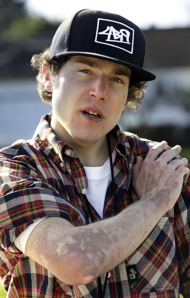 Nicholas Broms, who was involved in a drug-related explosion last November, poses for a photo showing his burn scars from the explosion in Portland, Ore., Monday, March 4, 2013.  Broms was one of the growing number of casualties from manufacturing hash oil, a potent marijuana byproduct made with butane. Disasters from the do-it-yourself drug have been recorded around the country in a phenomenon reminiscent of meth lab mishaps, but not as common. (AP Photo/Don Ryan)